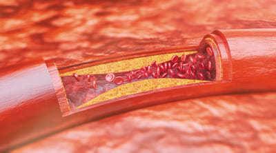 Arterie und Plaque